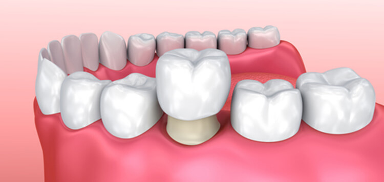 "Patients in Alliston ask, ""Why does your tooth need a dental crown and what is the purpose of a crown?"""