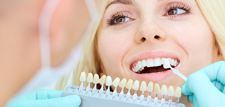Porcelain Veneers for Natural Tooth Appearance in Alliston area