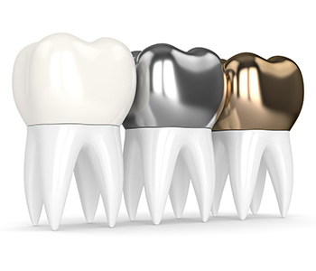 What type of crown is best in Alliston area