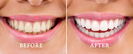 Teeth whitening patient results in Alliston ON
