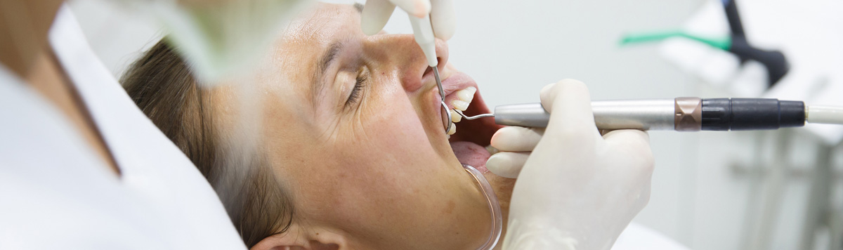 Dominion Street Dental in Alliston, ON offers Periodontal Open Flap Debridement
